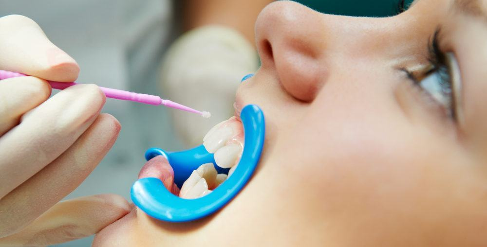 Dental Sealants