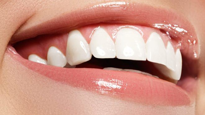Kết quả hình ảnh cho Common questions when you bleach the teeth
