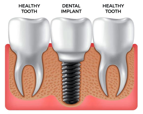 Dental Implants: A History
